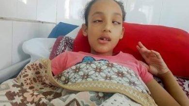 """Photo of """"يا بنت البواب ده أبوها مهندس بترول""""..ولية أمر تعتدى على الطفلة """"روان"""" وتتسبب لها فى شلل"""